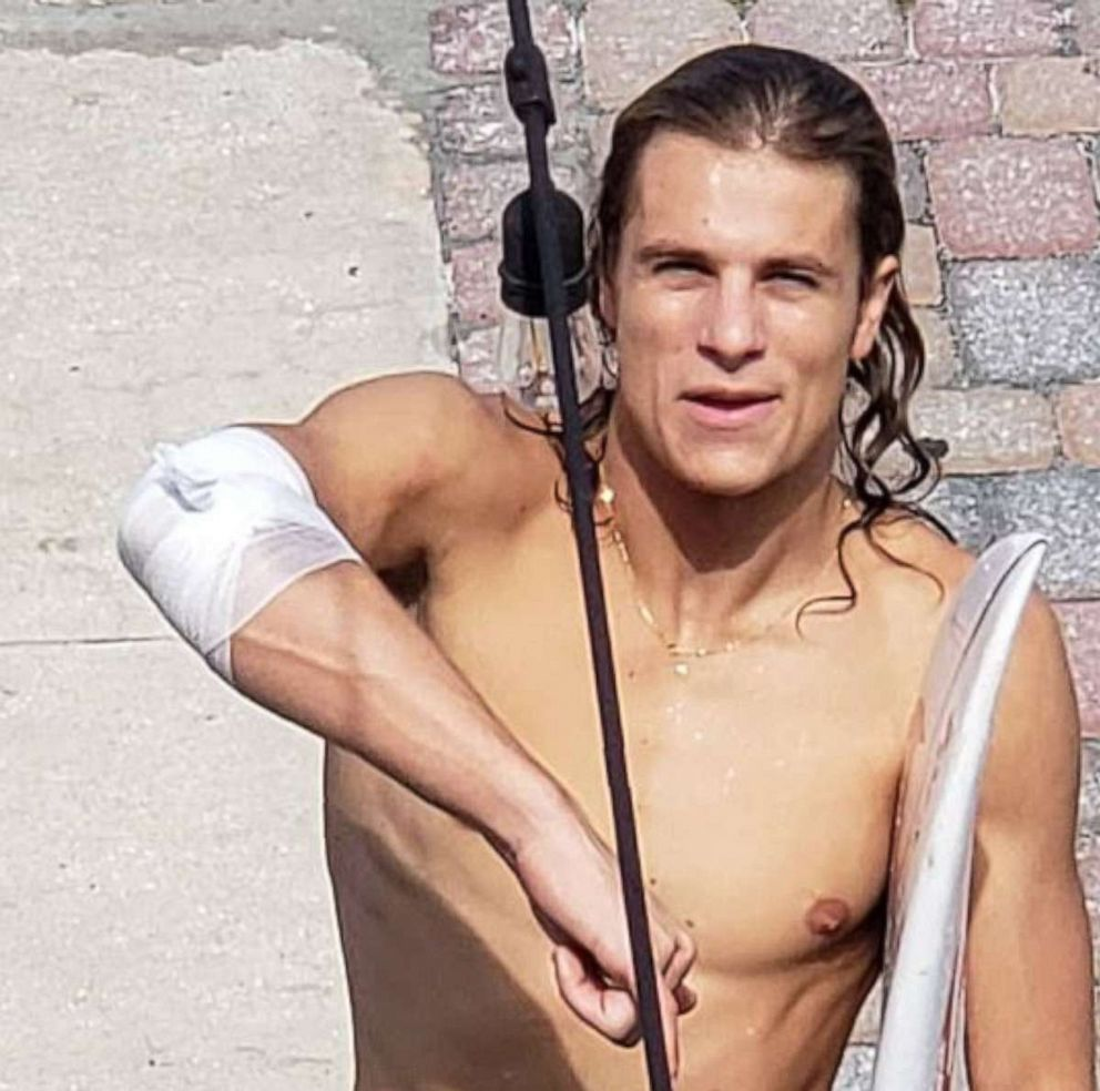 PHOTO: Frank ORourke, 23, shows off his bandaged right arm after he was bitten by a shark while surfing in Jacksonville Beach, Fla., on Saturday, July 27, 2019.