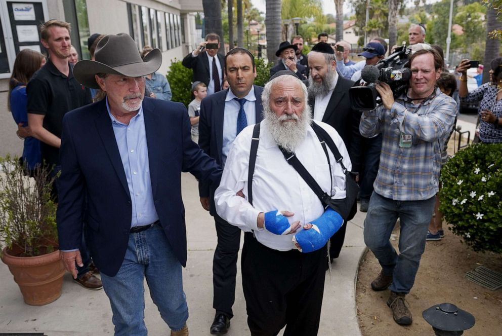 PHOTO: Executive Director Rabbi Ysrael Goldstein, who was shot in the hands, walks towards a press conference with Poway Mayor Steve Vaus outside of the Chabad of Poway Synagogue on April 28, 2019 in Poway, Calif.