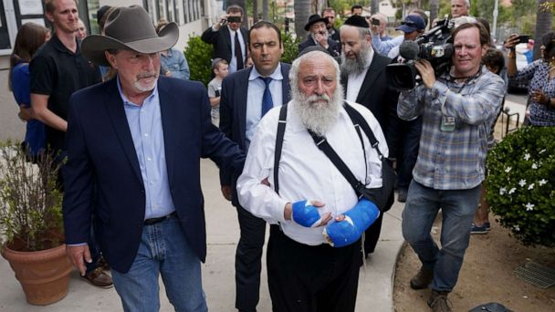 Wounded rabbi pleads for people to stand up to anti-Semitism by filling temples