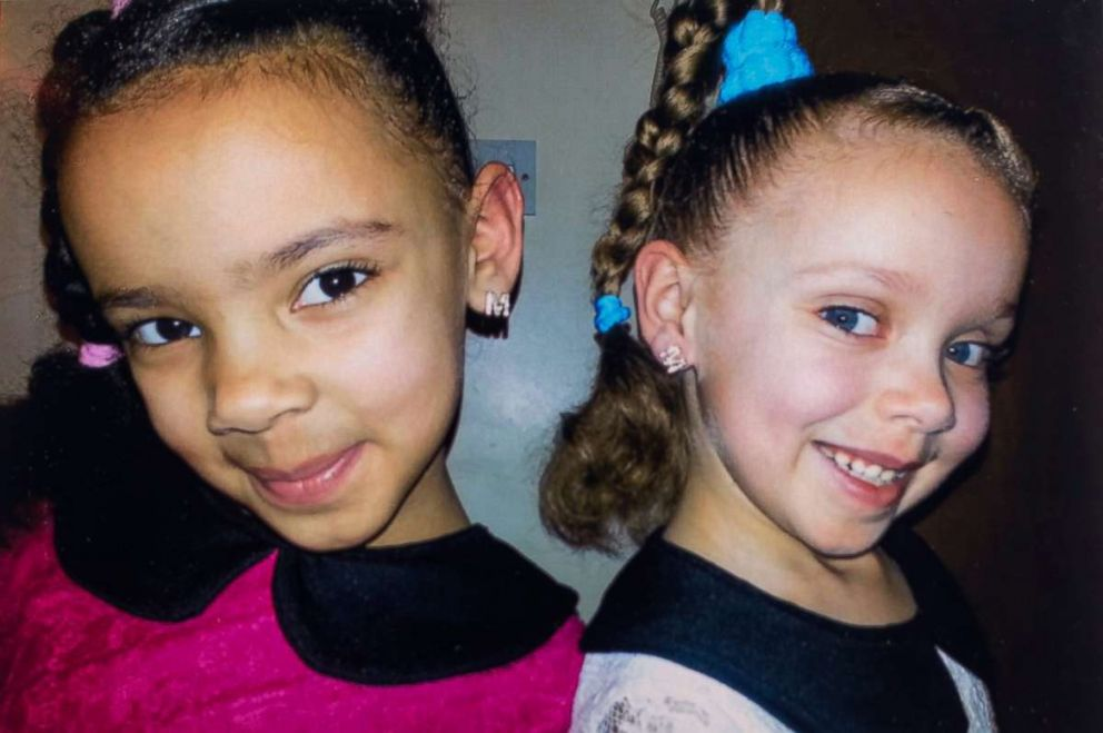 PHOTO: Millie, left, and Marcia, right are fraternal twin sisters who each resemble one of their parents.