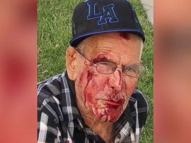 Charges upgraded to attempted murder in brick attack on 92-year-old man
