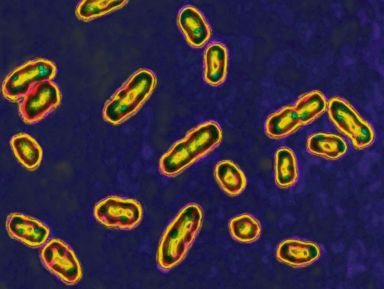 Child in Idaho recovering from plague, state's 2nd case since 1990: Officials