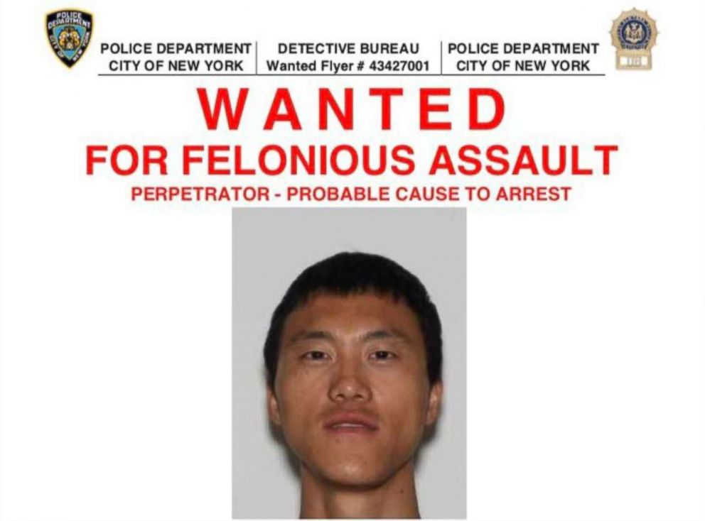 PHOTO: NYPD is searching for Yong Yu, 38 who has been accused of committing felonious assault in Brooklyn on June 21, 2018.