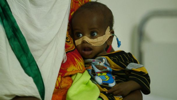 Dr. Yousef Ali speaks with ABC News' David Muir about Somalia's famine crisis