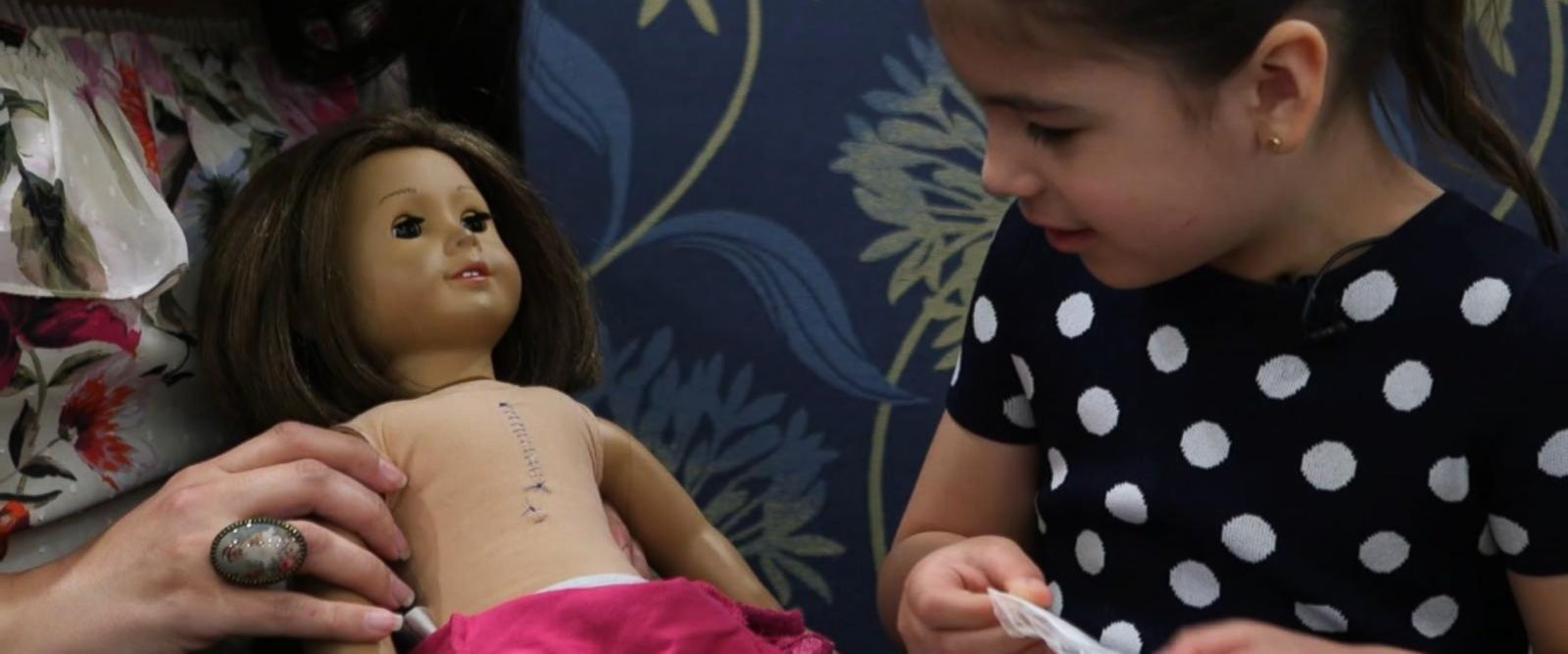 VIDEO: Little girl and her American Girl doll have matching surgery scars
