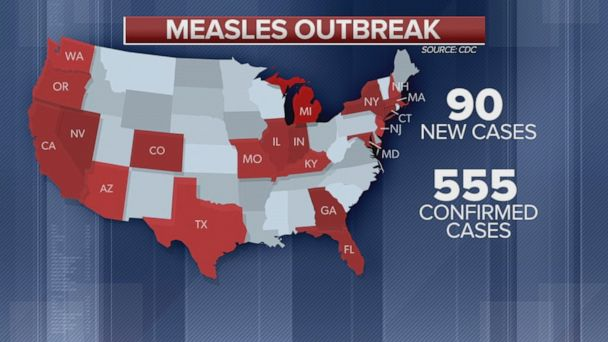 90 new measles cases in one week: CDC