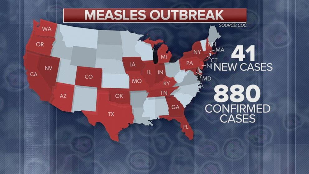 At least 880 confirmed cases of measles in 24 states: CDC