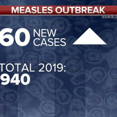 Alarming new numbers in the measles outbreak   GMA
