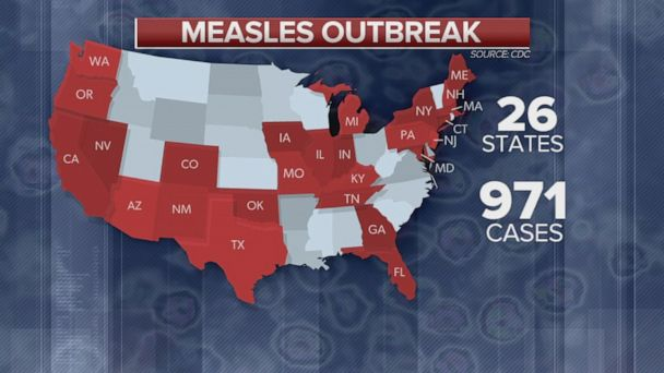 971 cases of measles reported in 26 states: CDC