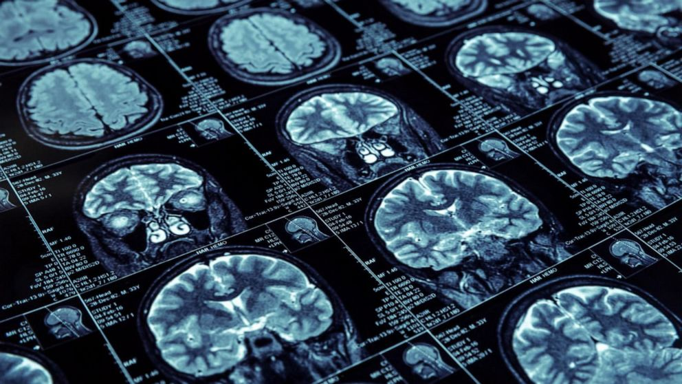 Different Alzheimer's disease risks for men, women: Scientists