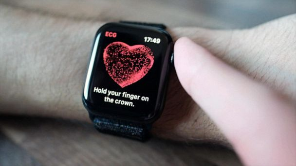 Apple Watch reliably detects atrial fibrillations: Study