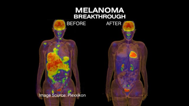 VIDEO: Doctors announce breakthrough treatment for melanoma.