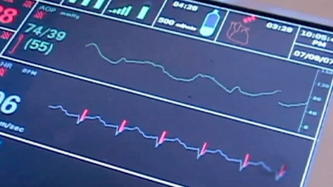 VIDEO: New Device Keeps Heart Beating During Transplant