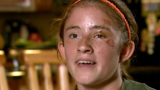 Girl, 12, Survives Black Bear Attack Video
