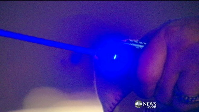 VIDEO: FAA releases cases in which lasers directed toward sky have blinded pilots.